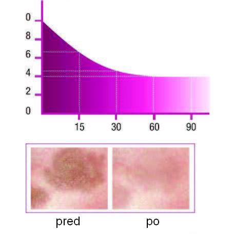 Klinické výsledky, Grafy, Hnedé škrvny