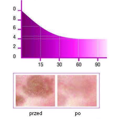 Krém na pigmentové škvrny