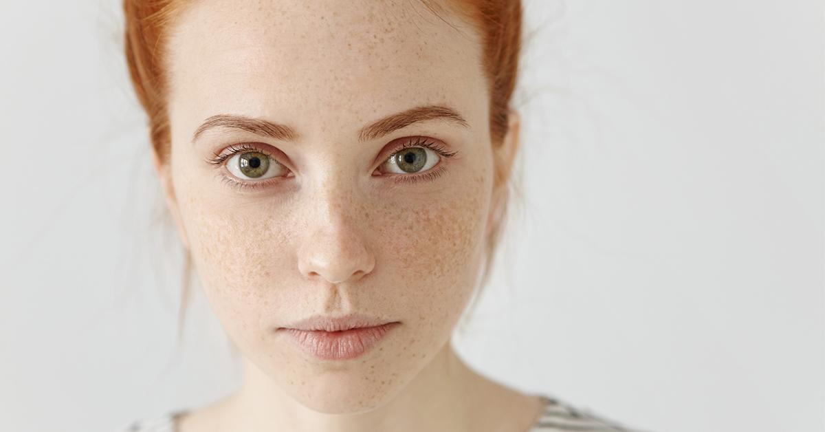 portret mladej zeny so svetlou pokozkou rysavymi vlasmi a pehami